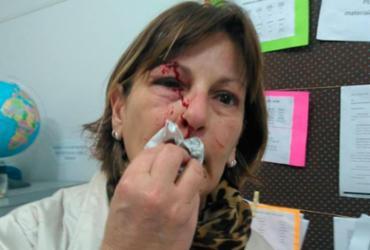 Professora denuncia agressão física provocada por aluno de 15 anos