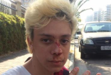 Youtuber é agredido e diz que foi vítima de homofobia