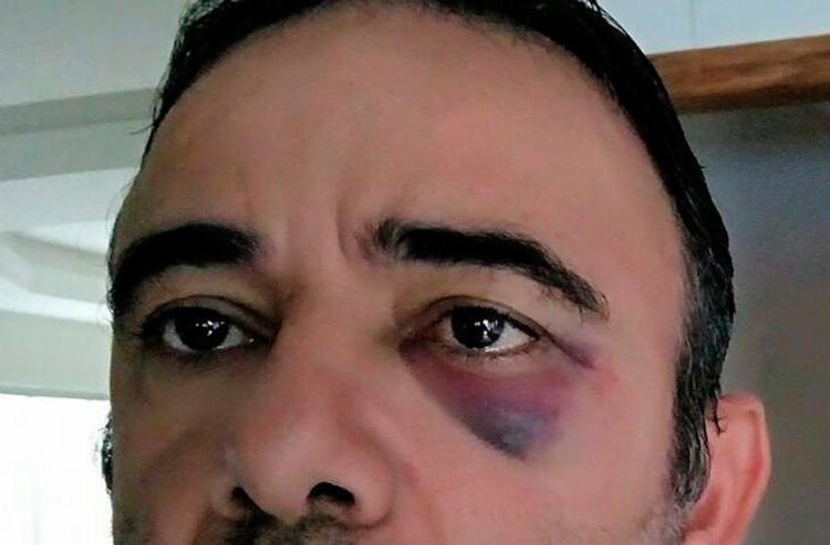 Agente disse que foi agredido com chutes e socos - Foto: Divulgação | Prefeitura de Ilhéus