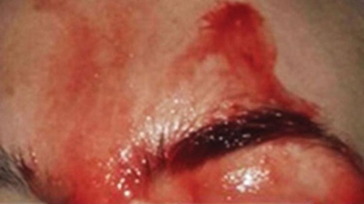 Italiana sangra pelo suor por conta de doença rara - Foto: Reprodução