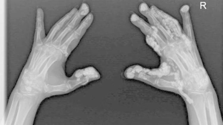 A síndrome está atacando as mãos da ativista ambiental, Rebecca Wilers - Foto: Reprodução