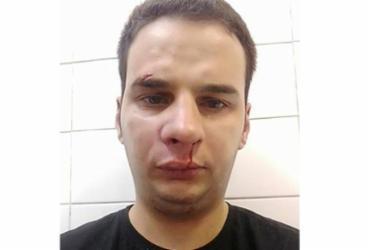 Funkeiro MC Livinho é acusado de agredir funcionário após show   Reprodução   Facebook