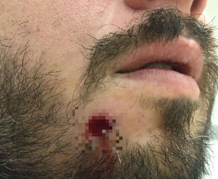 Marcel Ribeiro foi baleado durante um roubo - Foto: Arquivo Pessoal