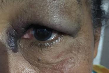 Dívida de R$ 40 faz vendedor agredir idosa com soco no rosto | Reprodução | Sigi Vilares