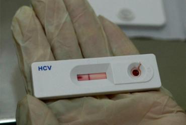 Testes rápidos detectam 14 casos de HIV em foliões no Carnaval | Divulgação | Agência Brasil