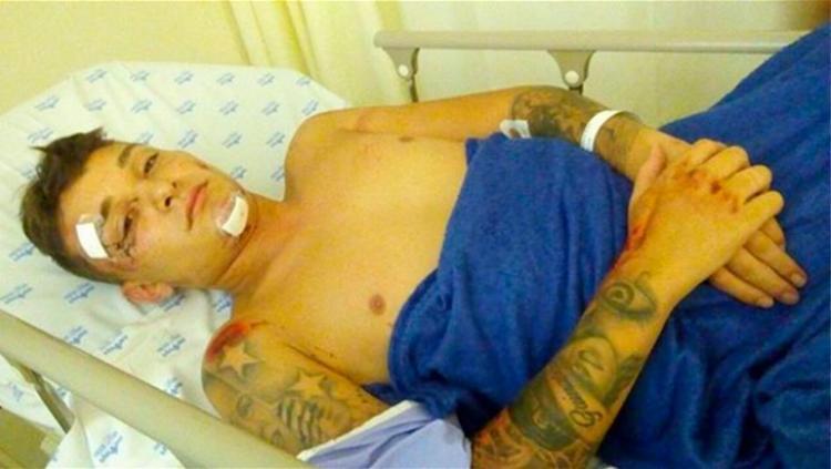 Cantor sofreu acidente em condomínio no momento que voltava da casa de praia - Foto: Reprodução | Instagram