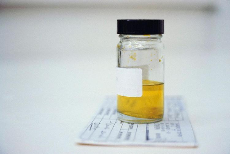 A descoberta poderá ser útil para aprimorar os testes diagnósticos da doença - Foto: Divulgação