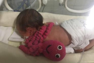 Polvos de crochê ajudam na recuperação de bebês prematuros em Porto Seguro