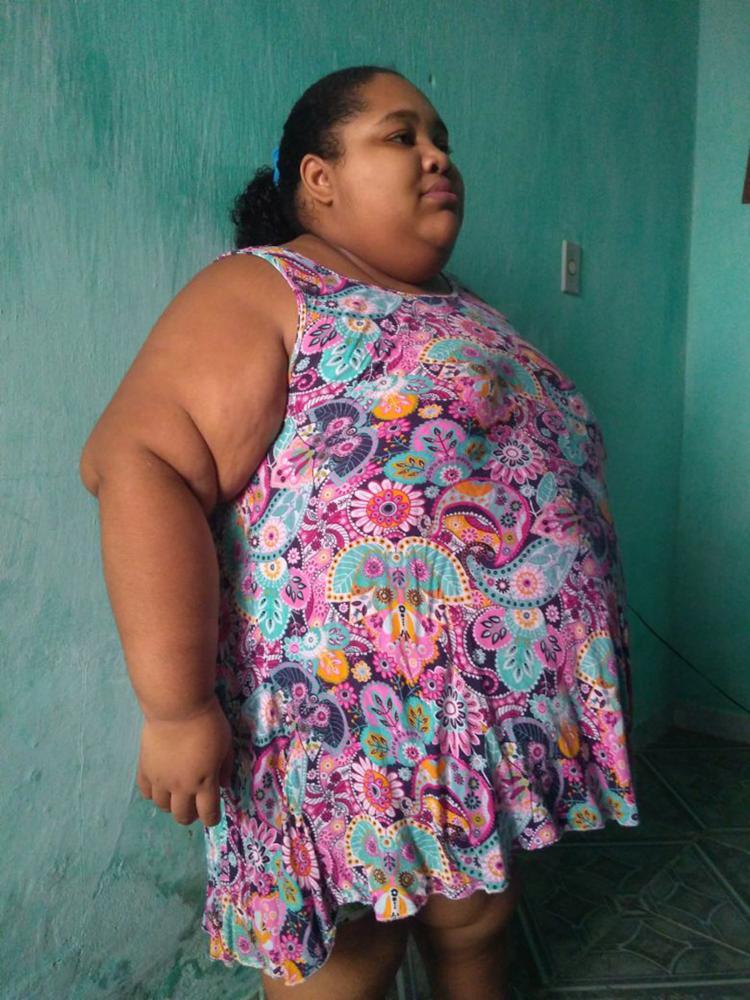 Naiane pesa 146 quilos devido à insuficiência do hormônio do crescimento - Foto: Divulgação