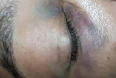 Cobradora de ônibus é agredida com soco por baleiro em Salvador   Reprodução   Facebook