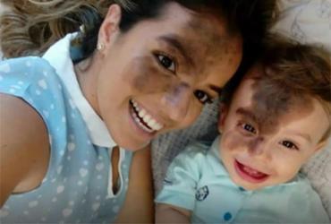Mãe pinta o rosto com mancha igual a do filho e movimenta redes sociais   Reprodução   Facebook