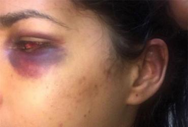 Filha de prefeito de Muniz Ferreira acusa ex-marido de agressão | Reprodução | Instagram