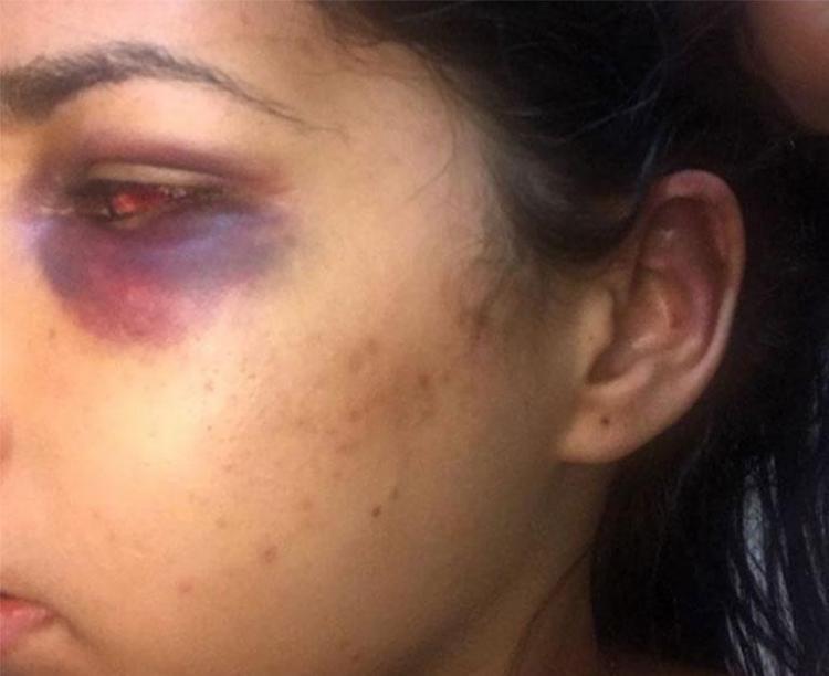 Clara apresenta machucados nos olhos, orelha, dedo e braço - Foto: Reprodução   Instagram