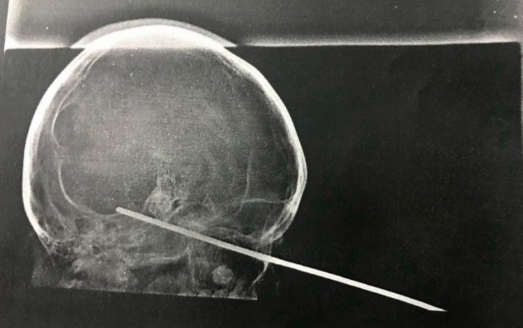 O garoto possui um pequeno inchaço no rosto por causa da cirurgia e uma lesão na pálpebra - Foto: Divulgação | Santa Casa de Itabuna