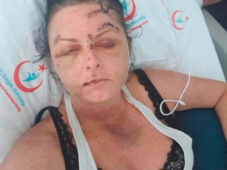 Vítima afirmou que foi atacada enquanto dormia no hotel