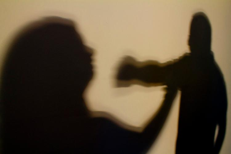 Vítima levou golpes nos olhos, rosto e mãos - Foto: Marcos Santos | USP Imagens