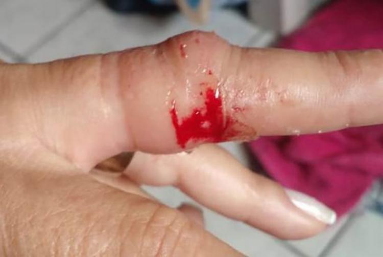 Vítima sofreu ferimentos no dedo após ação do criminoso - Foto: Aldo Matos | Acorda Cidade
