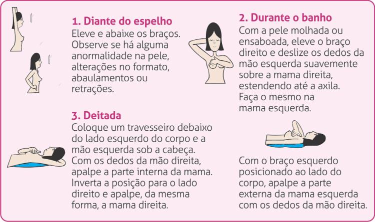 O autoexame contribui em 95% para a cura do câncer de mama