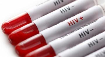Com medicamentos, pacientes vivendo com HIV podem se relacionar com parceiros sem o vírus e não transmitir o vírus - Divulgação