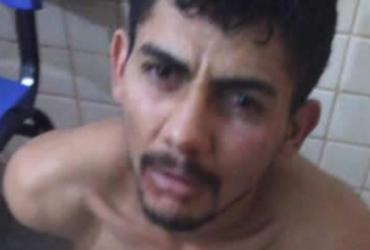 Homem é preso após arrancar o dedo de vizinha com mordida   Reprodução   blog Sigi Vilares