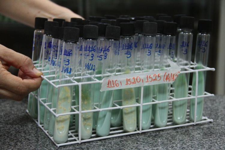 Teste para confirmação de tuberculose utiliza cultura da bactéria em ovos e tubos de ensaio em laboratório - Foto: Maicon Lemes Costa | Secom | RO