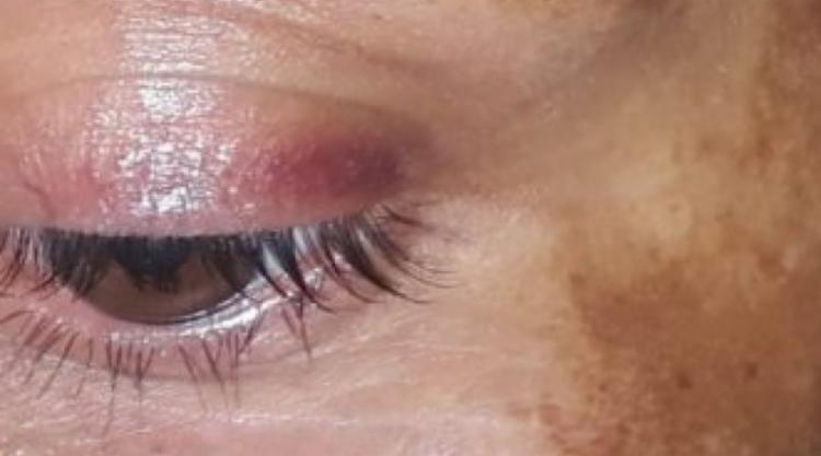 A vítima foi encontrada com ferimentos no rosto e no braço - Foto: Divulgação