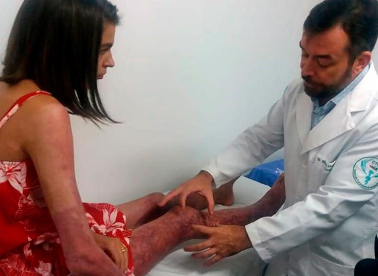 Adolescente de 16 anos foi a segunda paciente a receber transplante de pele na Bahia - Foto: Divulgação