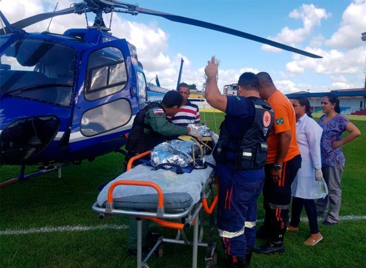 Criança foi vítima de acidente doméstico e teve 80% do corpo queimado - Foto: Divulgação | SSP