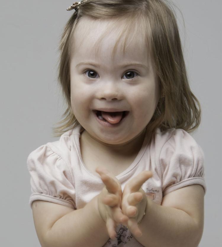 Vários fatores contribuíram para o aumento da longevidade das pessoas com síndrome de Down - Foto: Divulgação