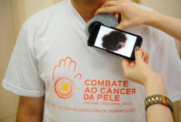 Mutirão fará diagnóstico precoce de câncer de pele em todo o país | Fernando Frazão | Agência Brasil