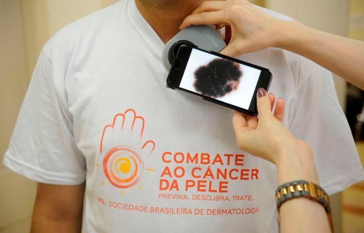 Quando o diagnóstico é feito mais tarde, a evolução da doença é ruim   Foto: Fernando Frazão   Agência Brasil - Foto: Fernando Frazão   Agência Brasil