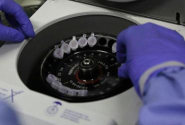 Número de casos suspeitos de coronavírus no Brasil é de 132 | Josué Damacena | Fiocruz