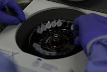 Coronavírus já provocou cinco mortes na Itália | Divulgação | Josué Damacena (IOC | Fiocruz)