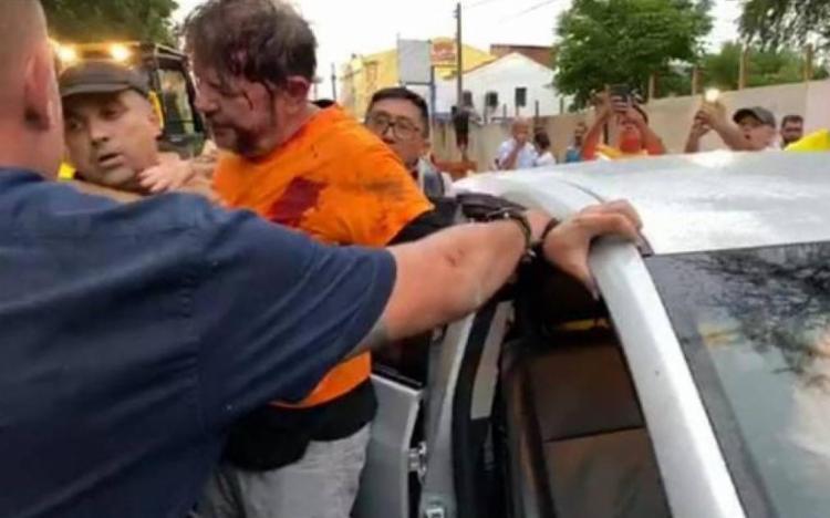 O parlamentar foi perto do ombro e levado ao Hospital do Coração de Sobral | Foto: Reprodução - Foto: Reprodução