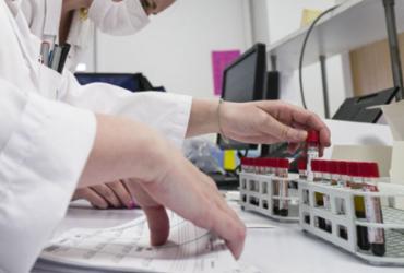 Capes cria mais 850 bolsas para pesquisas em pandemias |