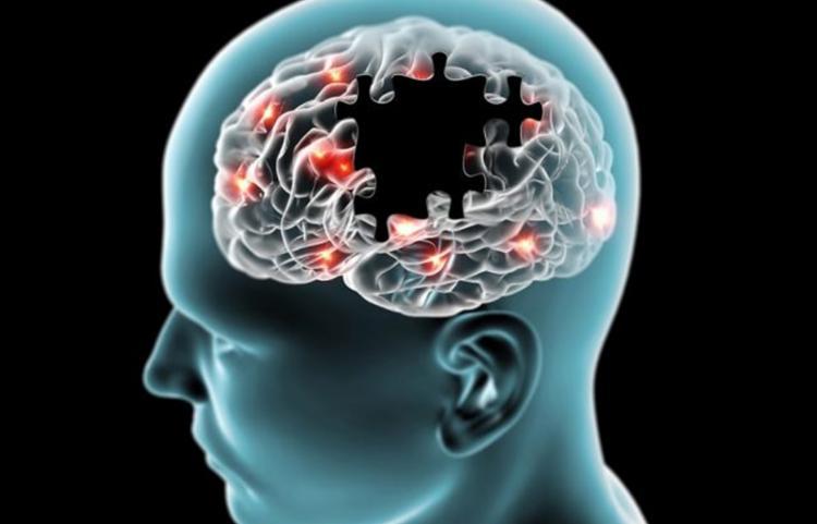 Sintomas vão muito além dos tremores nas mãos | Foto: Reprodução - Foto: Reprodução