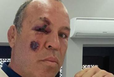 Lutador Wanderlei Silva é atropelado em Curitiba | Arquivo Pessoal | Wanderlei Silva