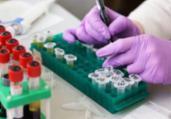 Governo entrega kits incompletos para testes de Covid | Reprodução | Facebook