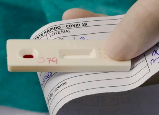 Bahia registra pouco mais de 3 mil casos de Covid-19 nas últimas 24 horas, aponta boletim | Leopoldo Silva | Agência Senado
