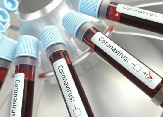 Bahia registra 3.171 novos casos de Covid-19 e 49 mortes em 24 horas | Reprodução