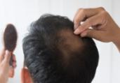 Queda de cabelo vira problema durante a quarentena | Divulgação