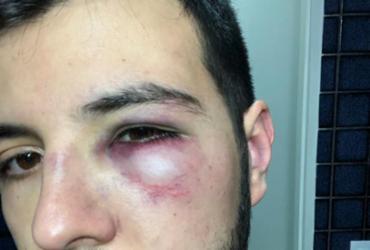 Repórter da Record é agredido durante assalto em Brasília | Reprodução | Twitter