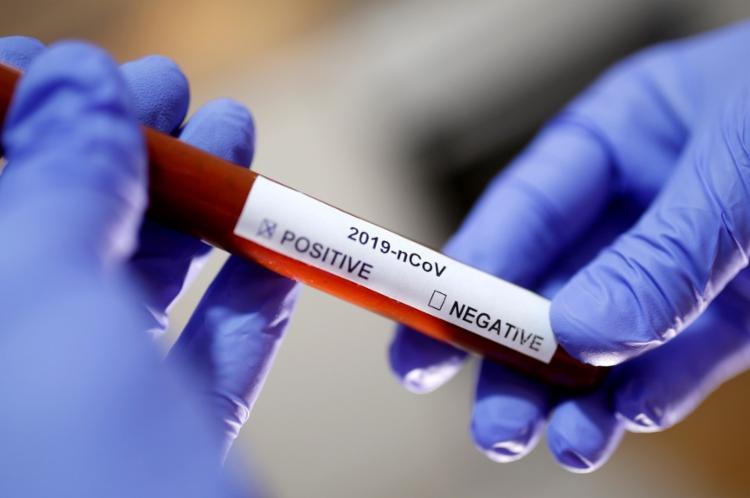 Número de casos ao redor do mundo agora é cinco vezes maior que o total de casos graves de influenza registrados anualmente - Foto: Agência Brasil 