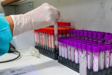 Após Bolsonaro negar compra de vacina, Anvisa diz que análise será técnica | Divulgação