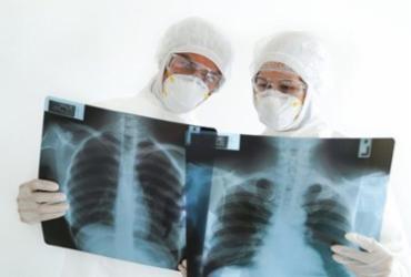 Pacientes recuperados da Covid-19 relatam sequelas; | REPRODUÇÃO