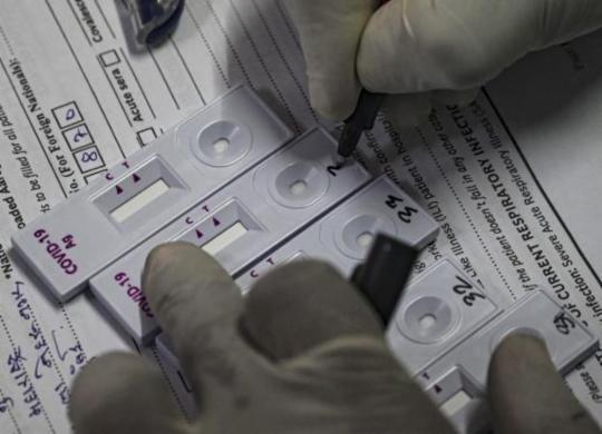 Brasil já conta com 157,9 mil mortes por Covid-19 e 5,43 milhões de casos | Indranil Mukherjee | AFP