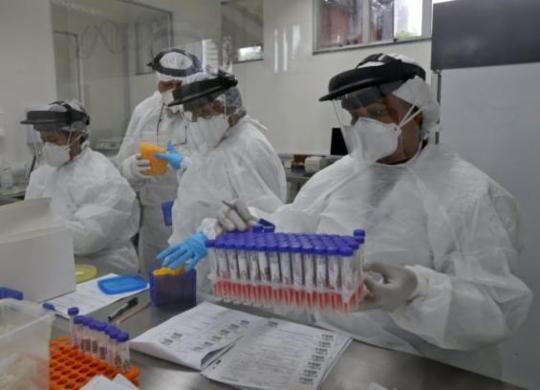 Bahia registra mais 29 mortes pelo coronavírus em 24h; total chega a 7,6 mil | Divulgação | Sesab