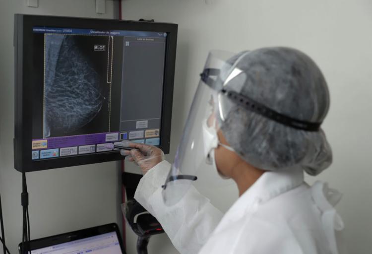 O número de mulheres que fazem mamografia anualmente ainda é muito baixo | Foto: Uendel Galter | Ag. A TARDE - Foto: Uendel Galter | Ag. A TARDE