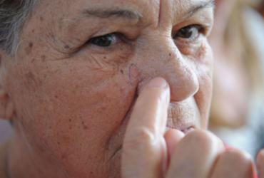 Pandemia dificulta diagnóstico precoce de câncer de pele, diz SBD | Fábio Rodrigues Pozzebom | Agência Brasil