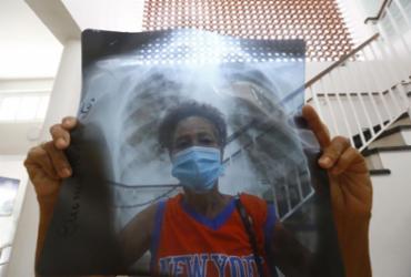 Instituto alerta população sobre sintomas da tuberculose em meio à pandemia de Covid-19 | Rafael Martins | Ag. A TARDE